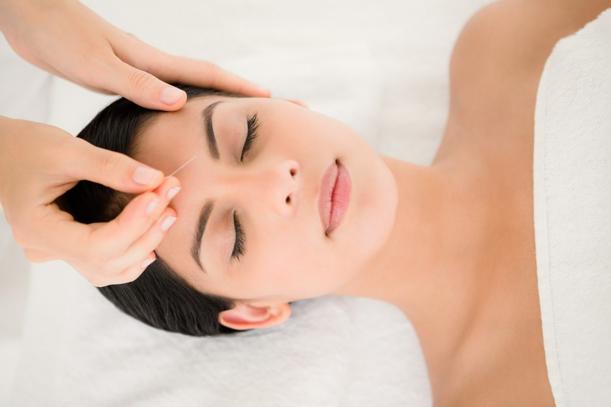 What-is-Acupuncture-1200x800.jpg
